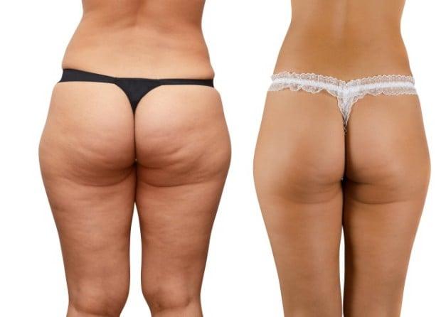 Como Acabar Com a Celulite Naturalmente